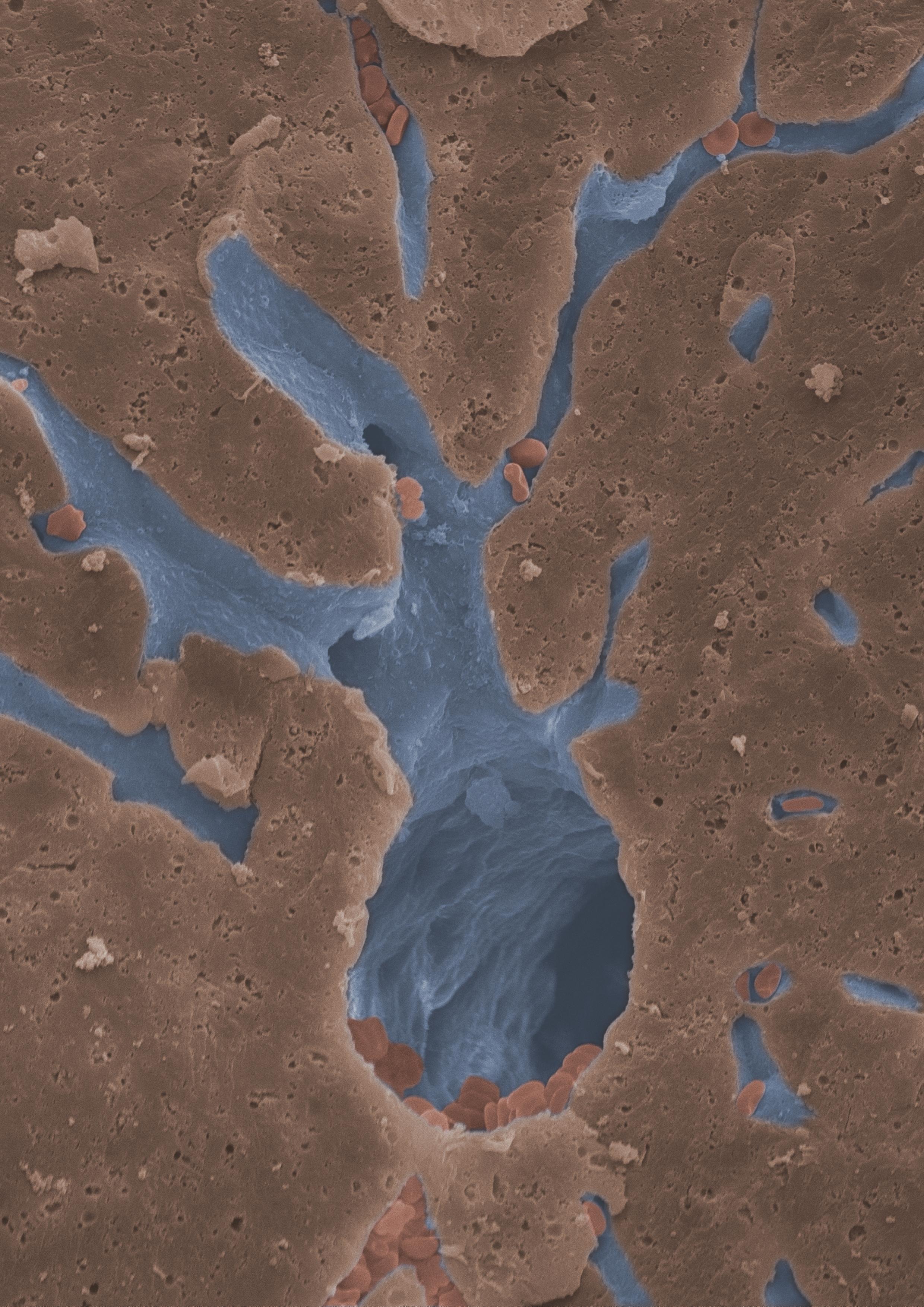 Eine Darstellung eines artifiziell gefärbten Blutgefäßes ist gezeigt. Es handelt sich um eine rasterelektronenmikroskopische Aufnahme eines hepatischen Blutgefäßes.