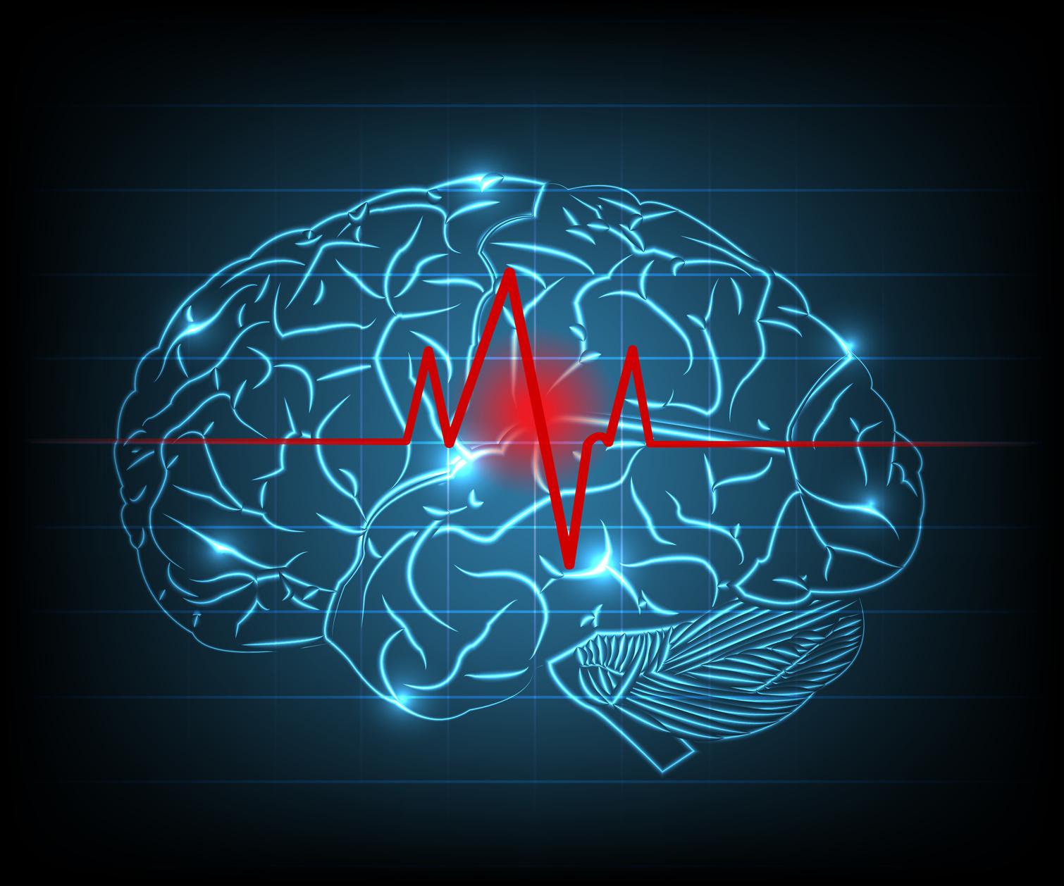 Zeichnung eines Gehirns, welches von einer roten Herzschlag-Linie durchzogen wird